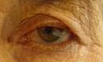 Δερματοχάλαση, Θεοδώρα Τσιρούκη, Χειρουργός Οφθαλμίατρος