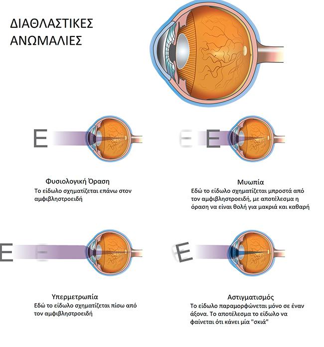 Διαθλαστικές Ανωμαλίες, Θεοδώρα Τσιρούκη, Χειρουργός Οφθαλμίατρος