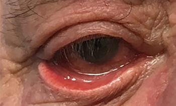 Εκτρόπιο, Θεοδώρα Τσιρούκη, Χειρουργός Οφθαλμίατρος