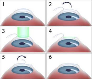 Διαθλαστικές Επεμβάσεις – Laser Μυωπίας, Υπερμετρωπίας και Αστιγματισμού, Θεοδώρα Τσιρούκη, Χειρουργός Οφθαλμίατρος