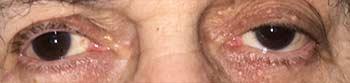 Βλεφαρόπτωση, Θεοδώρα Τσιρούκη, Χειρουργός Οφθαλμίατρος