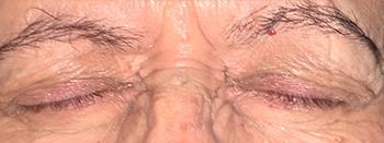 Βλεφαροσπασμός, Θεοδώρα Τσιρούκη, Χειρουργός Οφθαλμίατρος